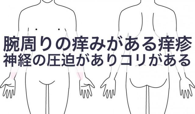 腕にかゆみを伴う痒疹