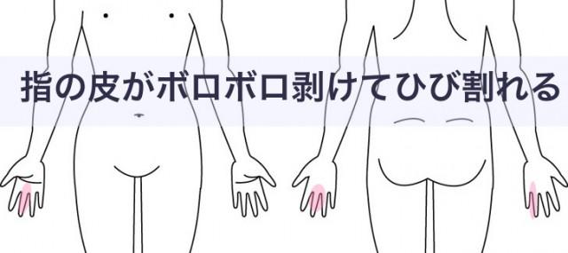 指の皮がボロボロ剥けてひび割れる