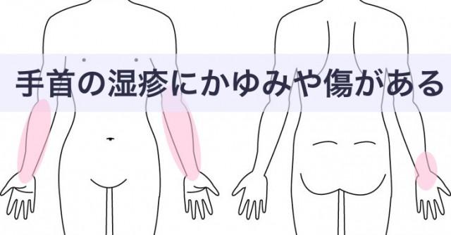 手首から腕のかゆみや傷