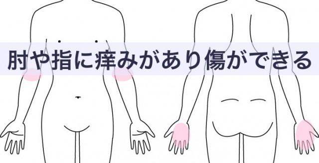 肘や指に痒みがあり傷ができる