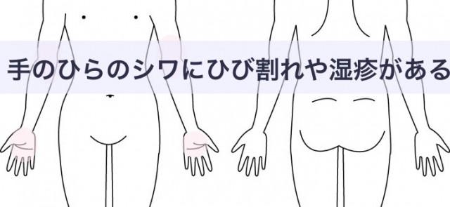 手のひらのシワに湿疹ができる