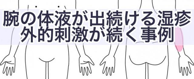 腕の体液が出続ける湿疹