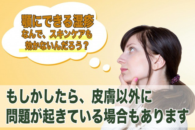 薬も効かない顎の下の湿疹の原因