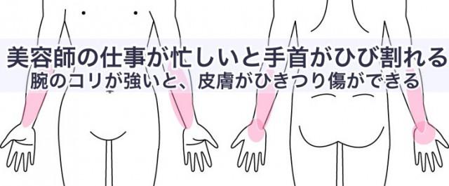 美容師の仕事が忙しいと手首がひび割れる