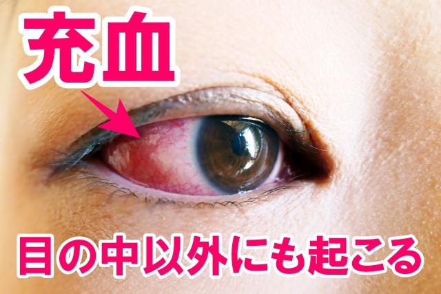 充血は目の中以外にも起こる