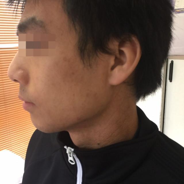 左顎の湿疹