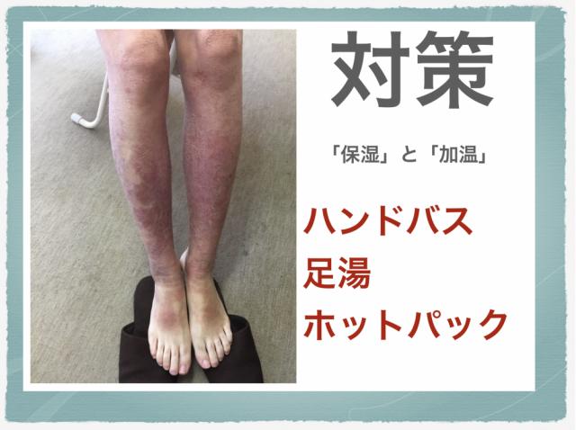 脛の湿疹の対策