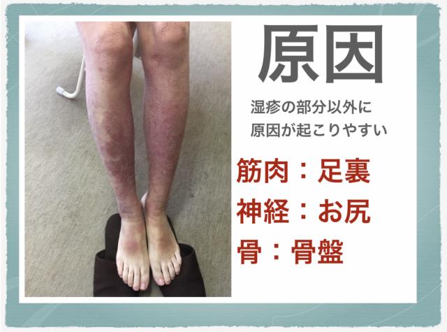 脛の湿疹の原因