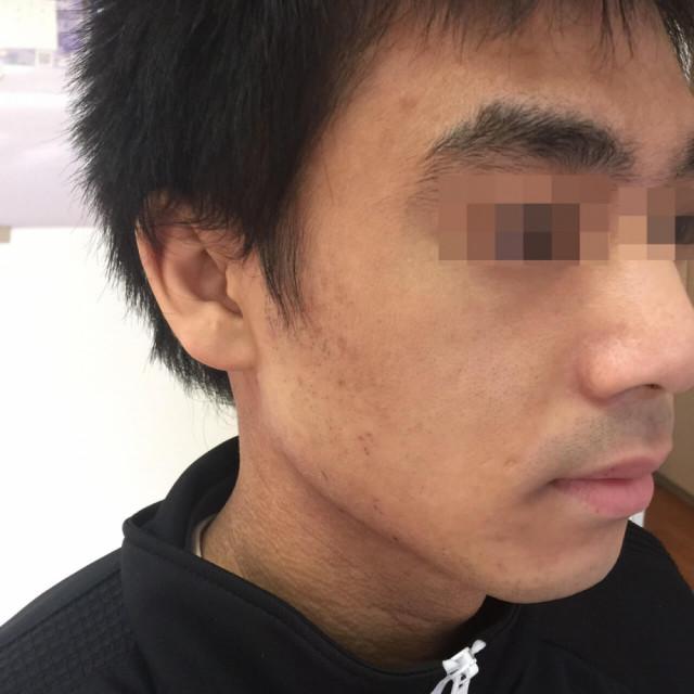 右顎の湿疹