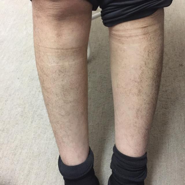腕のアミロイド苔癬