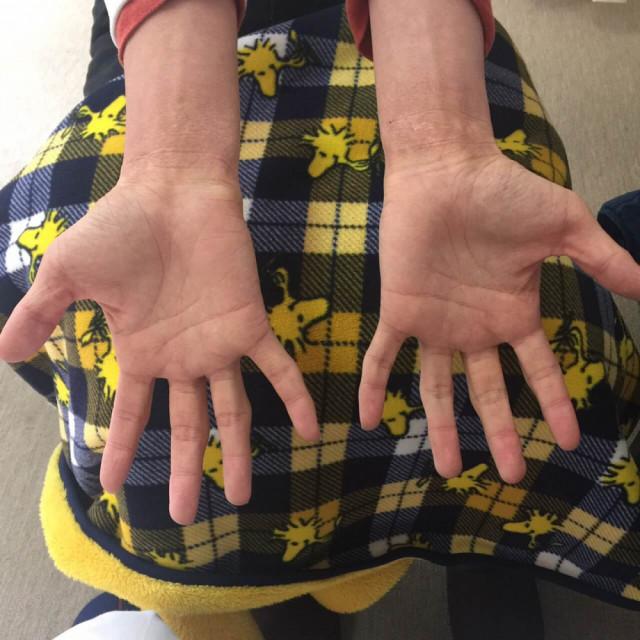 手首のアトピー