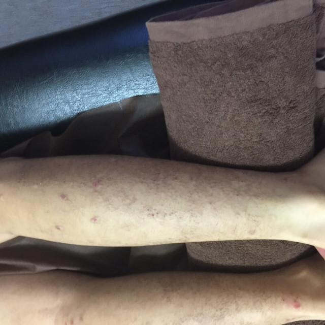 ふくらはぎのアミロイド苔癬