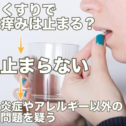 薬が効かない痒みは炎症以外