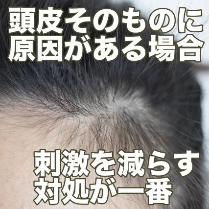 頭皮の痒みは刺激を減らす