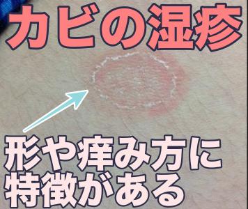 カビの湿疹