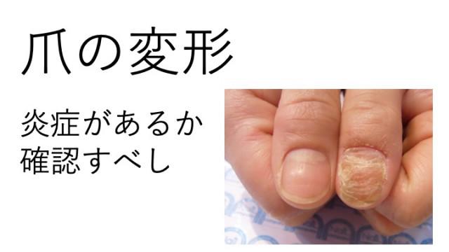 ボコボコした爪は炎症