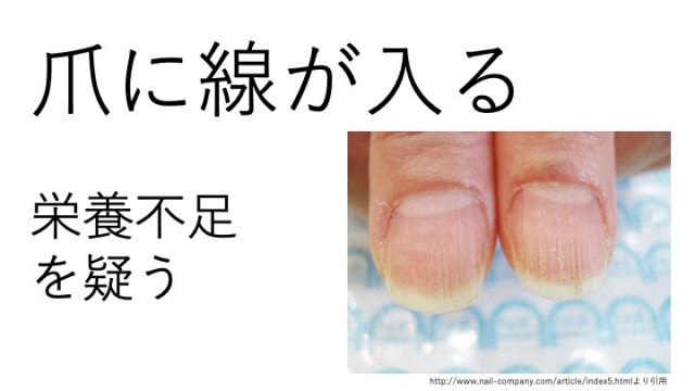 爪に線が入るのは栄養不足