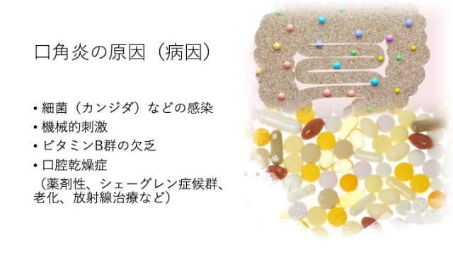 口角炎の原因(病因)