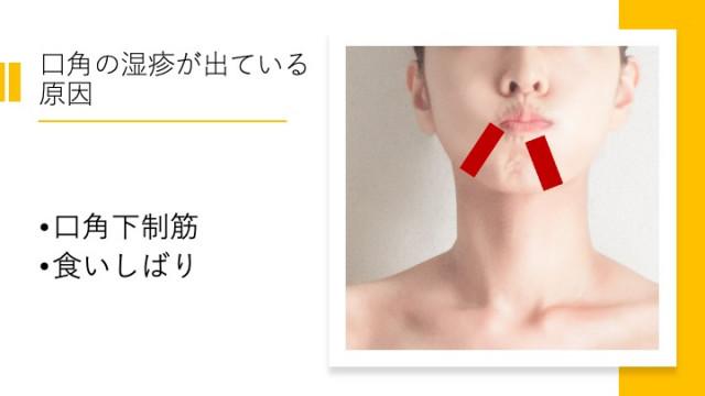 口角の湿疹が出ている原因
