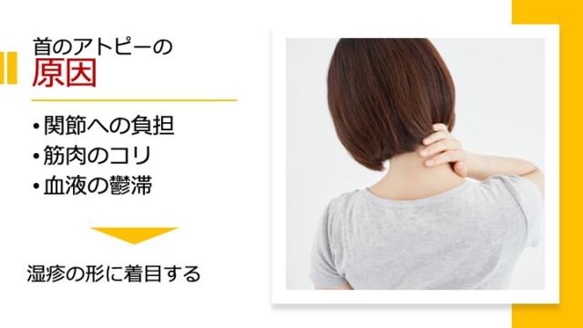 首のアトピーの原因