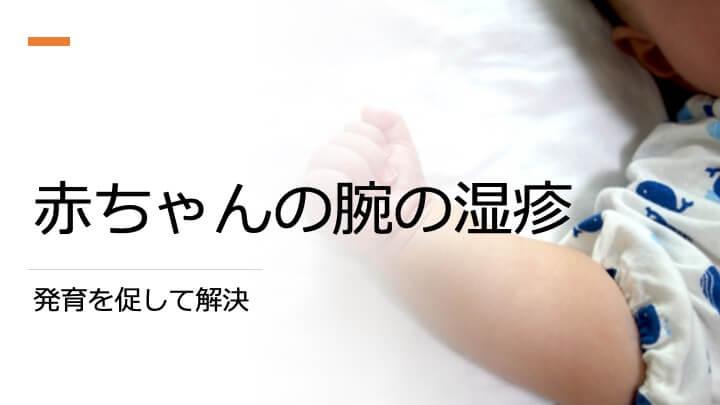 赤ちゃんの腕にできる湿疹